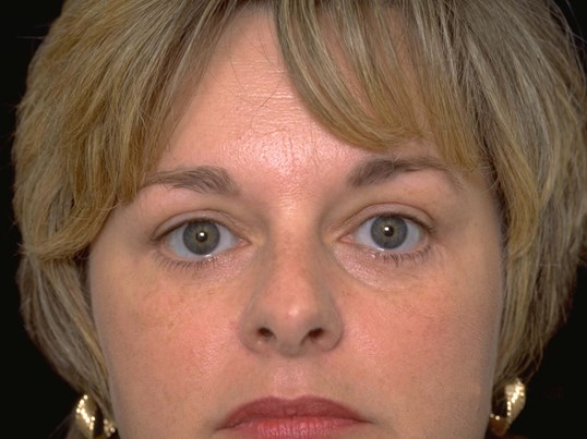 Upper and Lower Blepharoplasty After