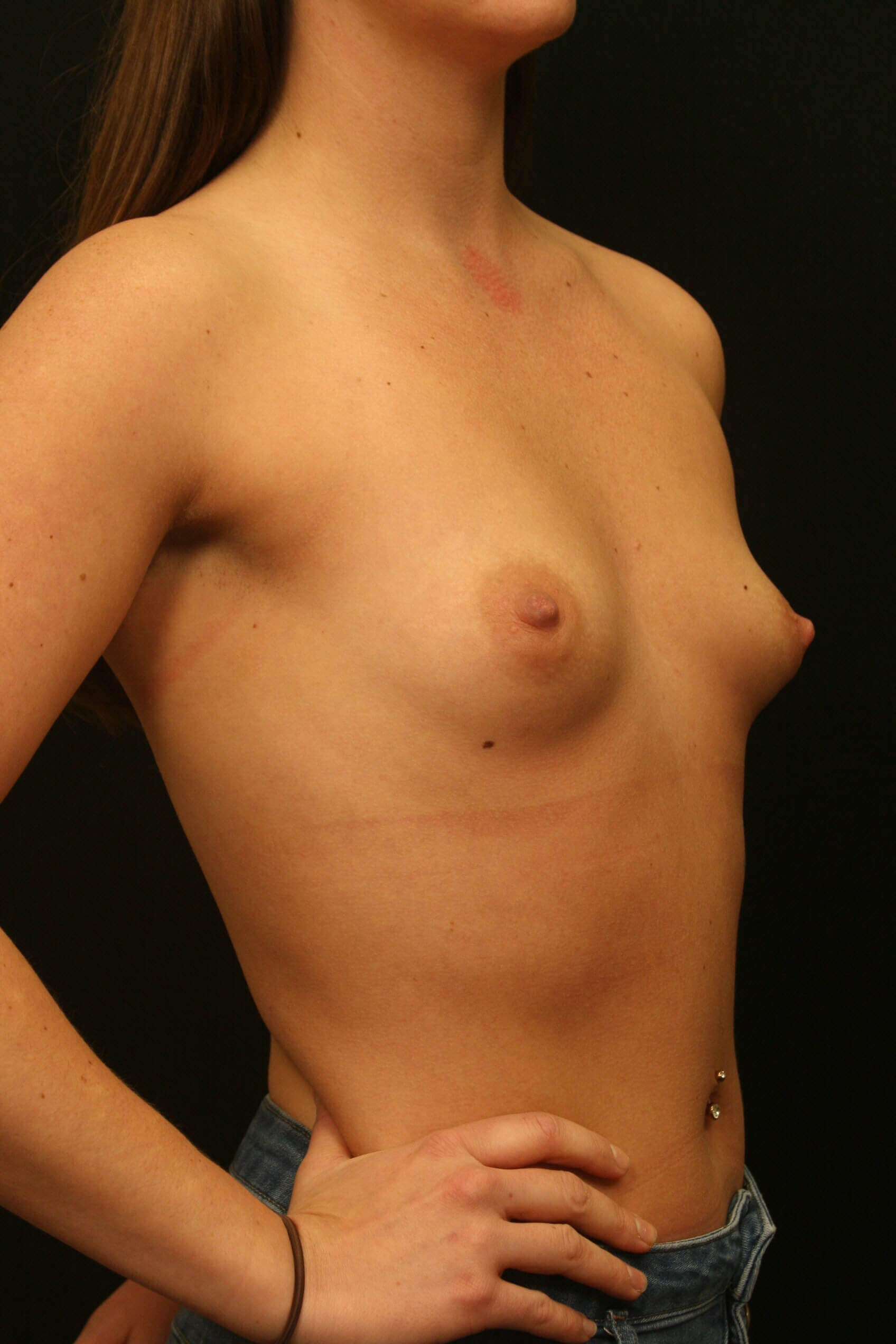 Breast Augmentation Results Before