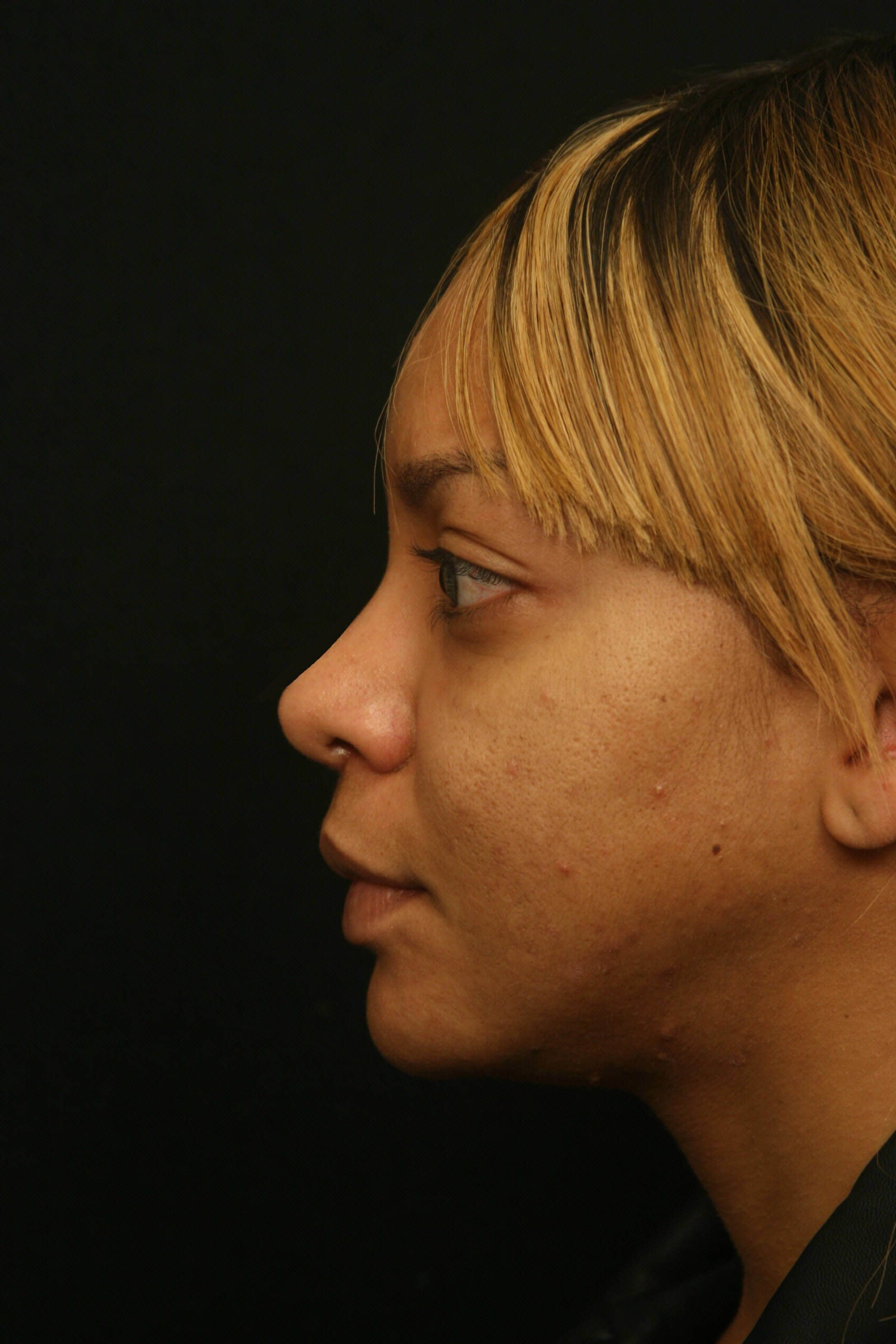 Rhinoplasty Before and After After