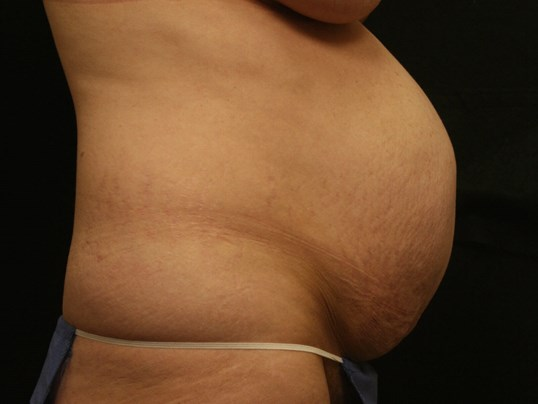 Tummy Tuck Before and After Before