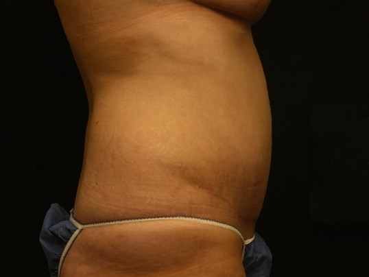 Tummy Tuck Before and After After