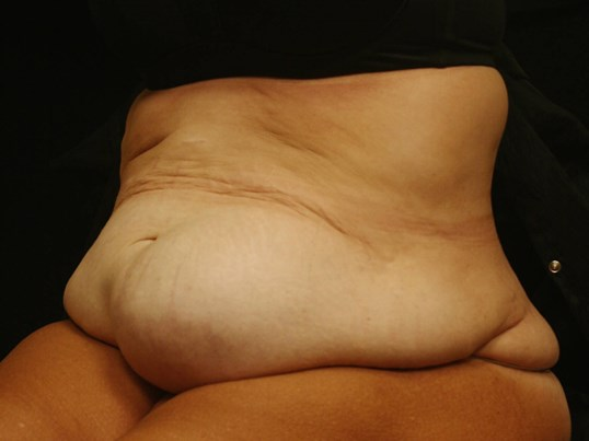 Abdominoplasty Results Before