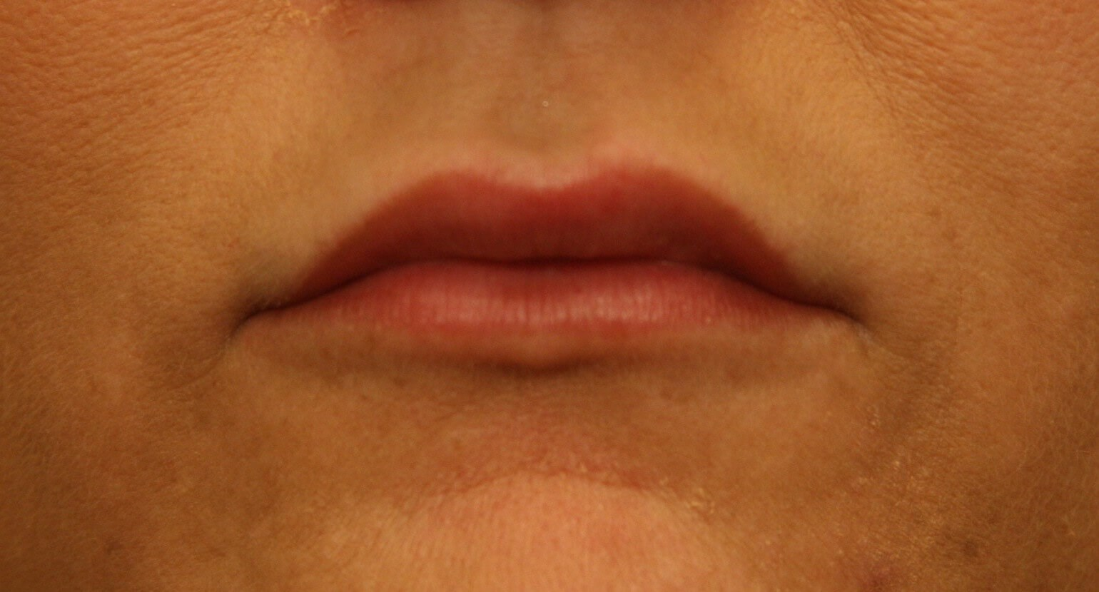 Lip Augmentation Results After