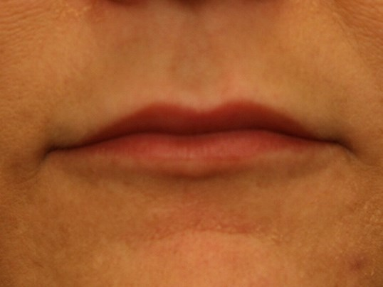 Lip Augmentation Results Before