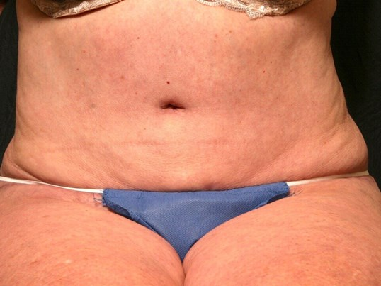 Abdominoplasty Results After