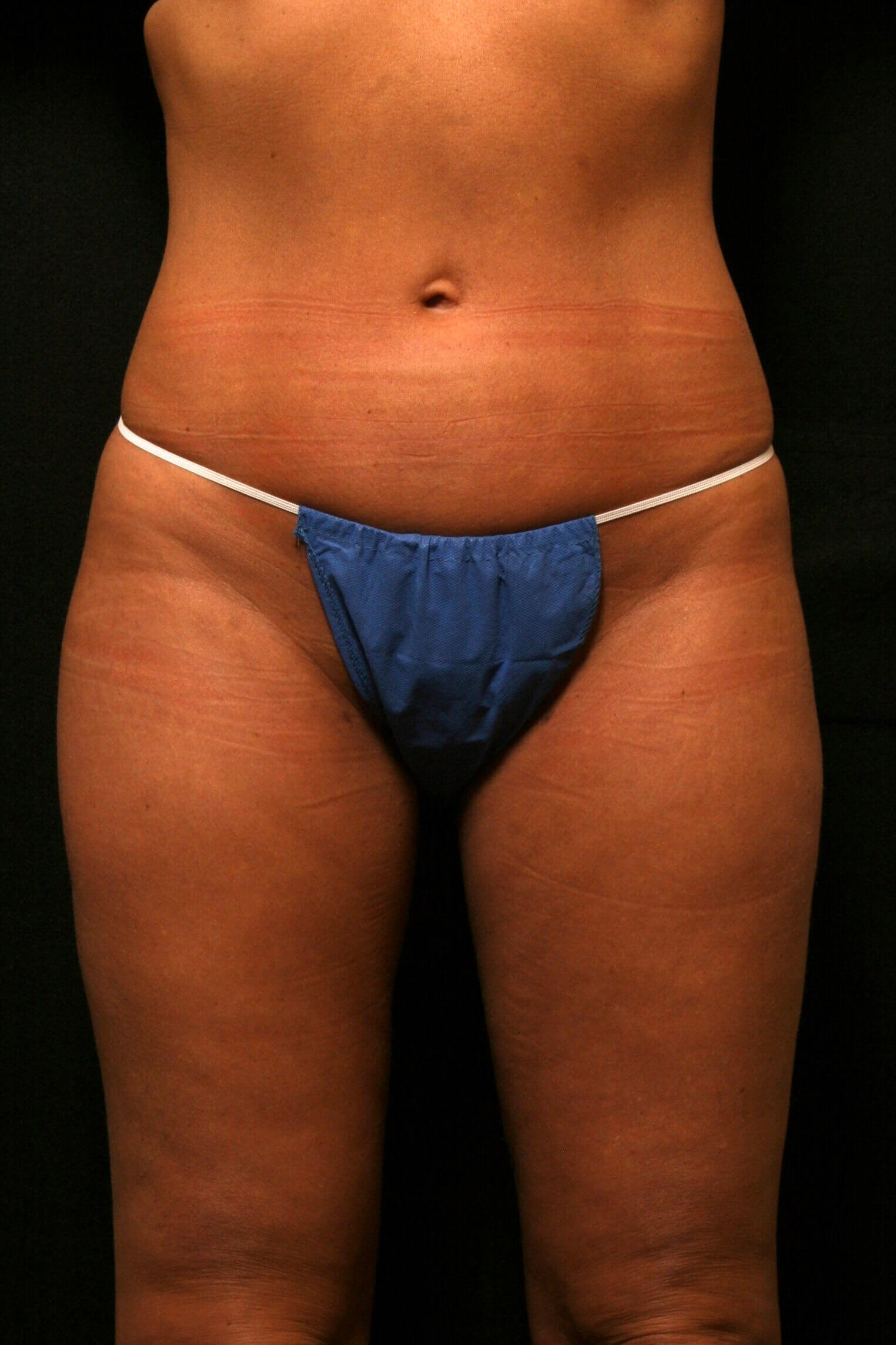 Liposuction Before and After After