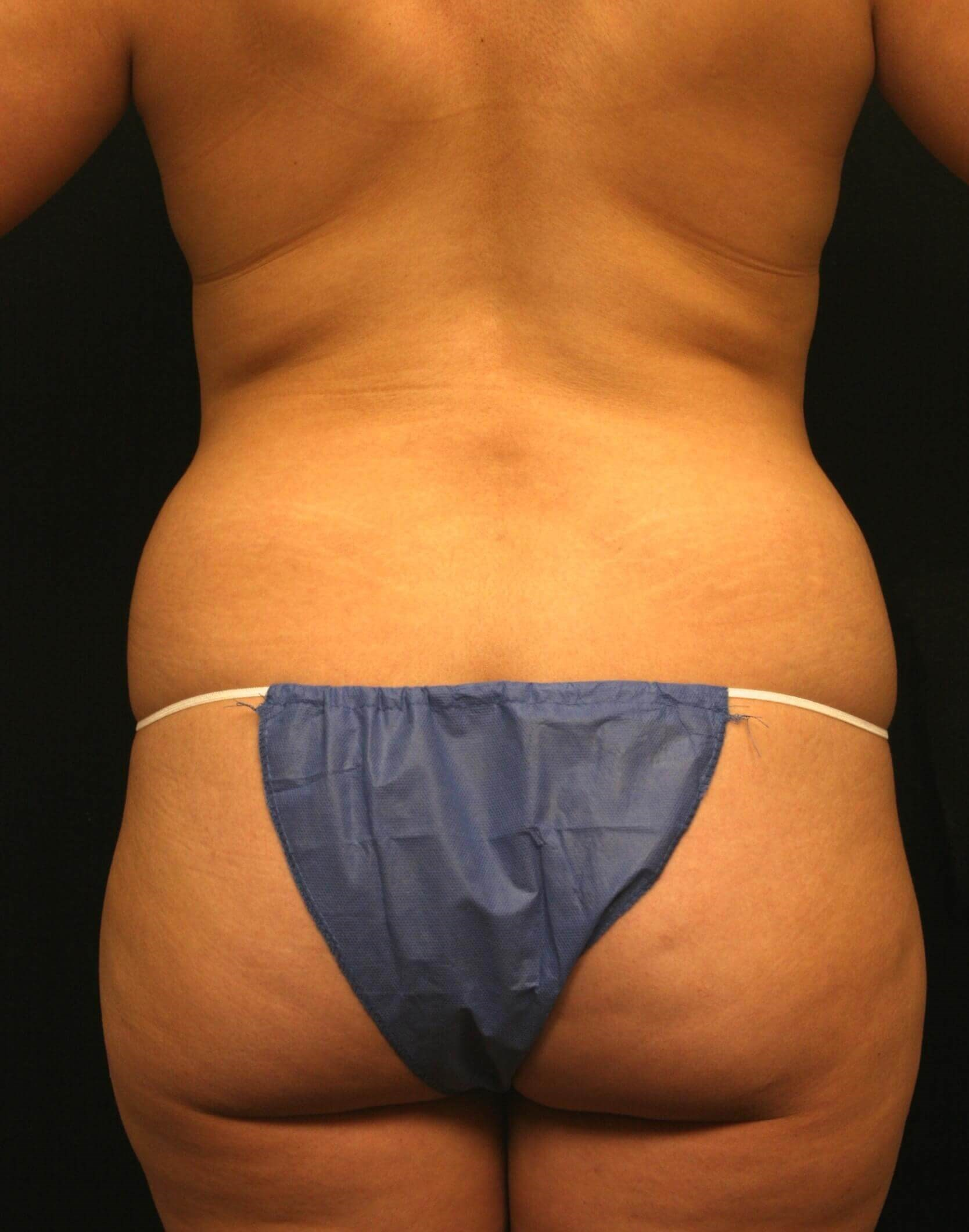 Liposuction Before and After Before