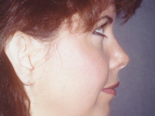 Chin Implant Before and After Before