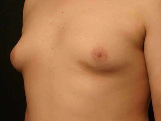 Gynecomastia Before and After Before