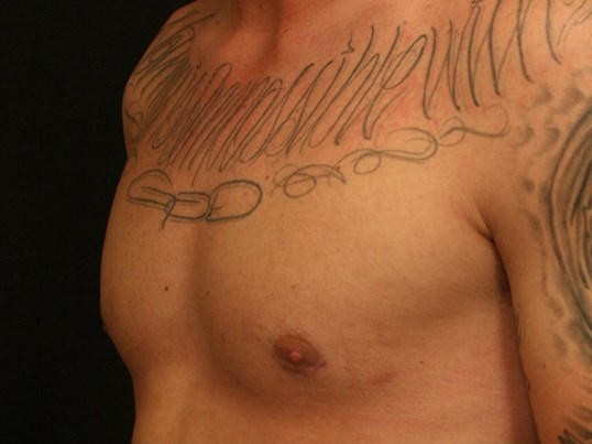 Gynecomastia Before and After After