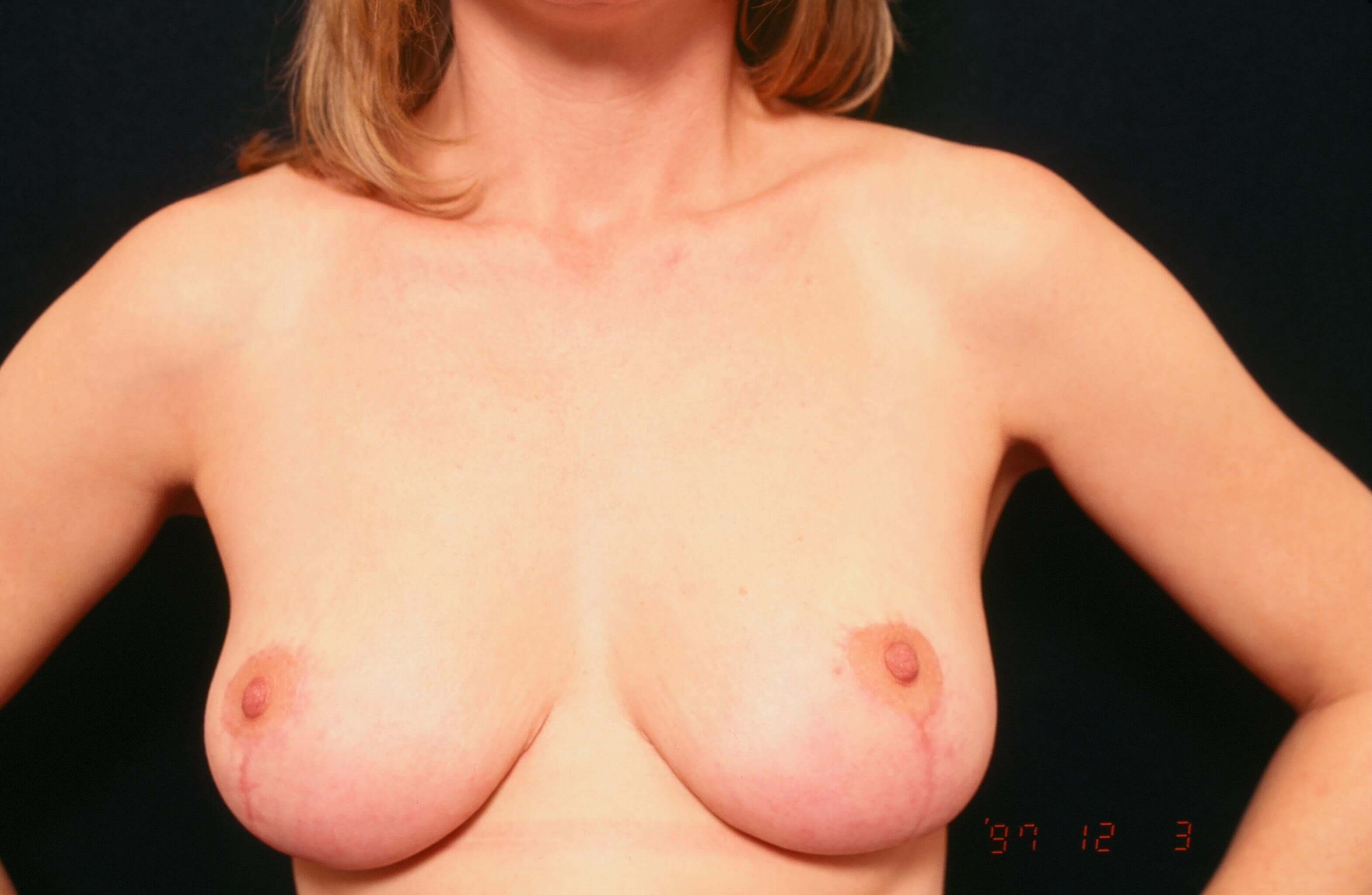Breast Lift Before and After After