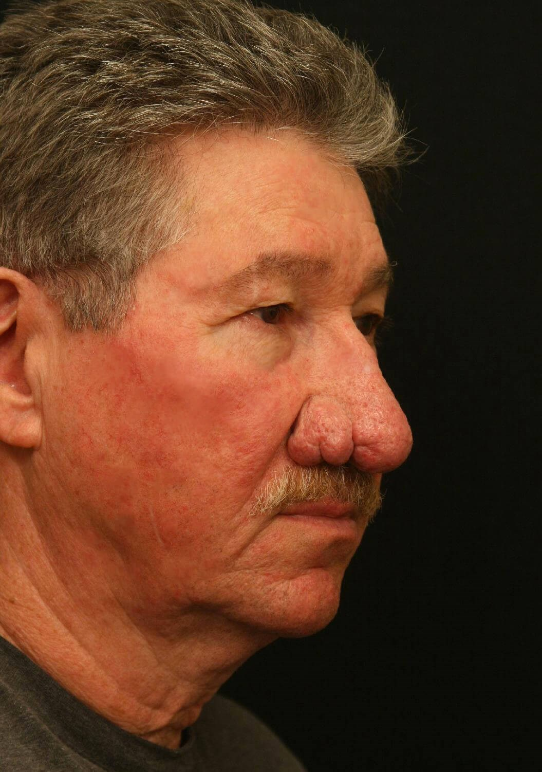 Treatment of Rhinophyma Before