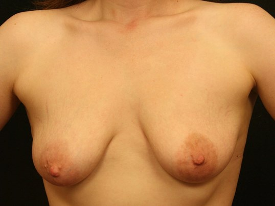 Breast Lift Before and After Before