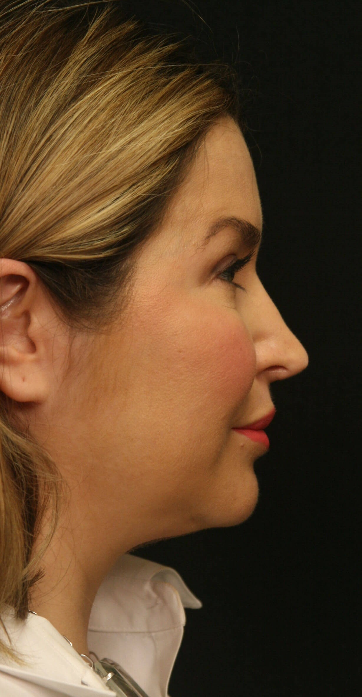 Revision Rhinoplasty Results Before